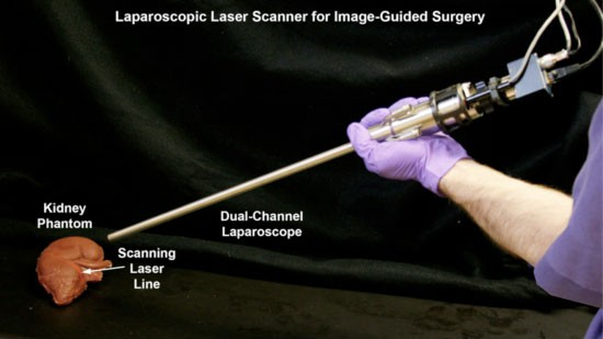 Laparoscopic Laser Scanner