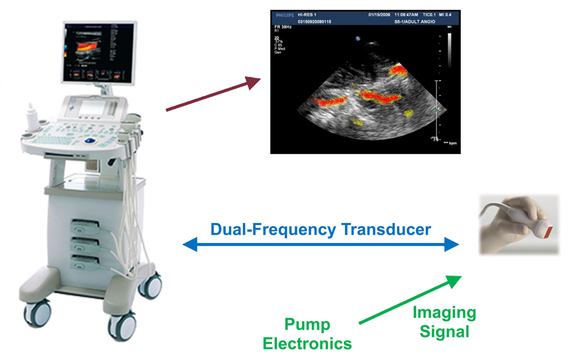 Creare's ultrasound-based microbubble imaging system.