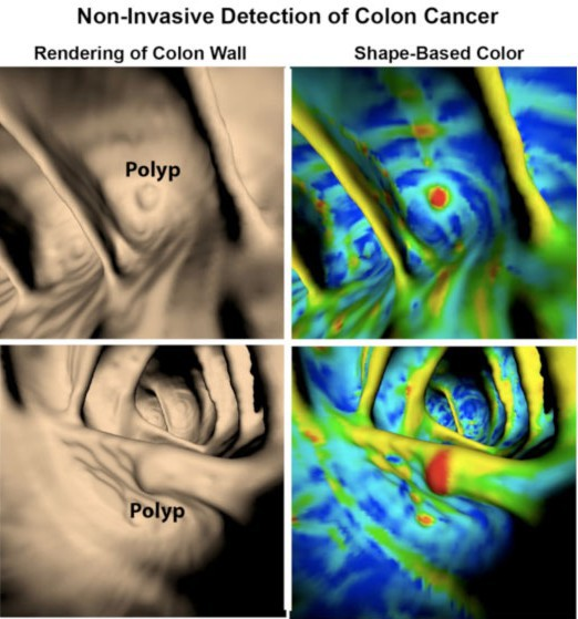 CT-based images of the colon wall processed to aid identification of polyps.